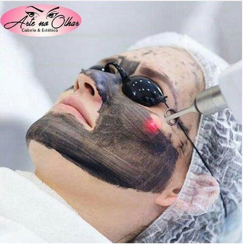 Laser Com Pasta De Carbono (trata Acne Ativa) de R$180 por R$120