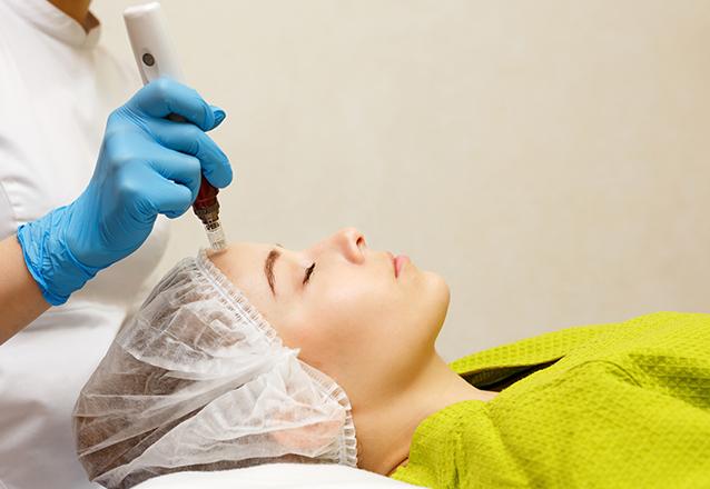A Estheticenter cuidando da sua pele! Microagulhamento + Serum Renovador + LED Colageno de R$150 por apenas R$85 na Estheticenter