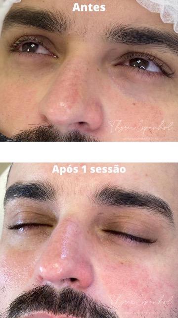 Revitalização labial (a área) de R$500 por apenas R$250